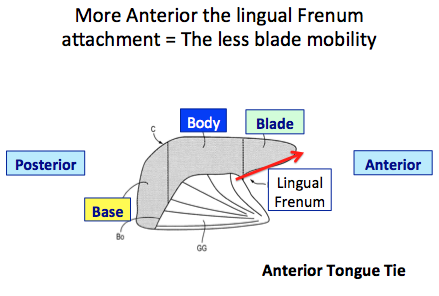 Anterior tongue tie graphic - ali pres