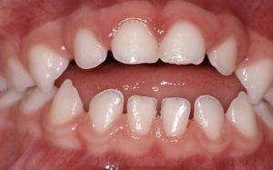 Primary teeth anterior open bite