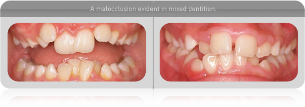 Crowding Mixed Dentition