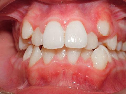 Dental crowding permanent teeth